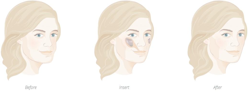 Cheek implant insertion point diagram