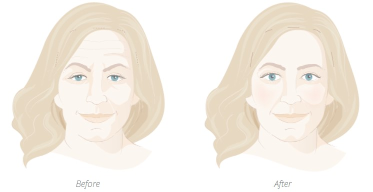 BEfore and after brow lift diagram