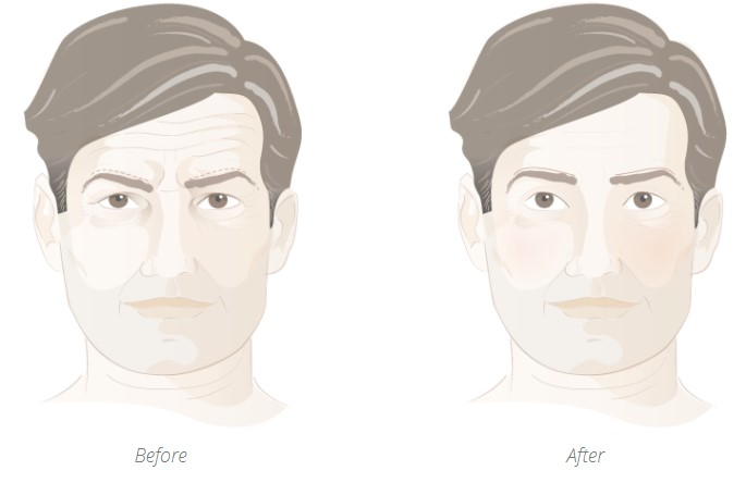 Before and after of eyelid lift