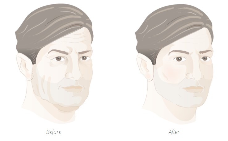 Before and after facelift for men