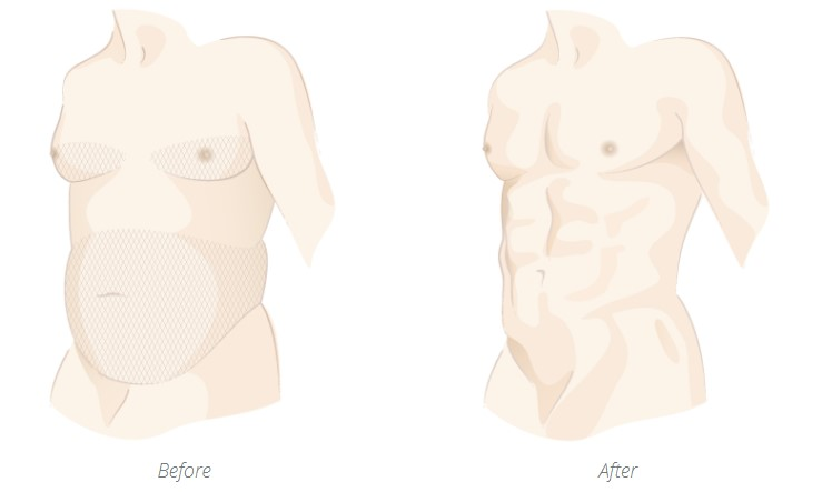 Before and after lipo for men
