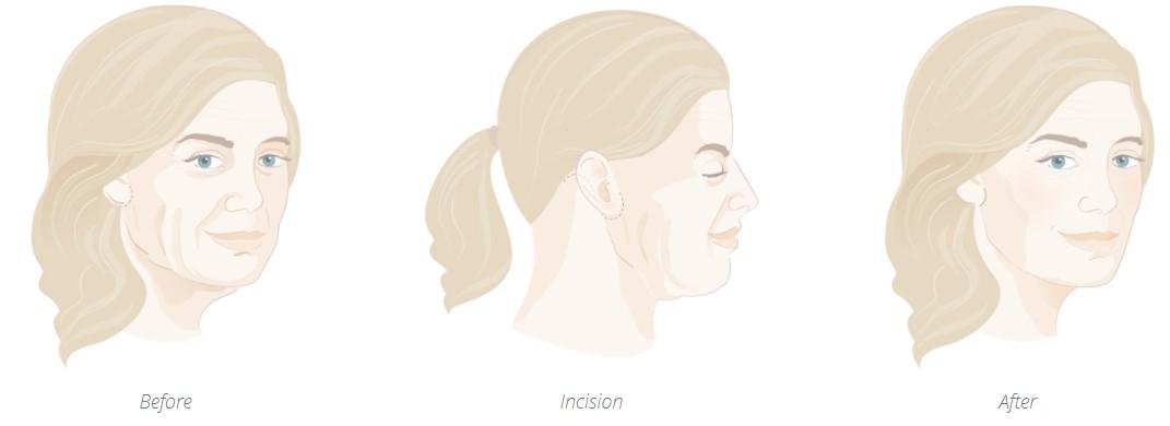 Necklift incision points diagram