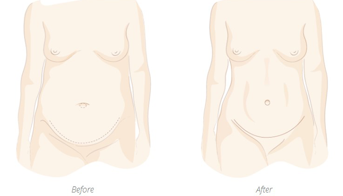 Tummy tuck before and after graphic MacDonald Plastic Surgery